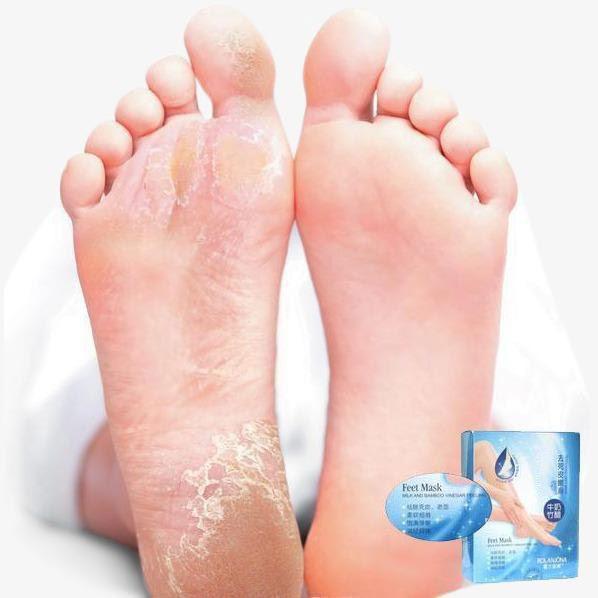 hård hud fødder sok